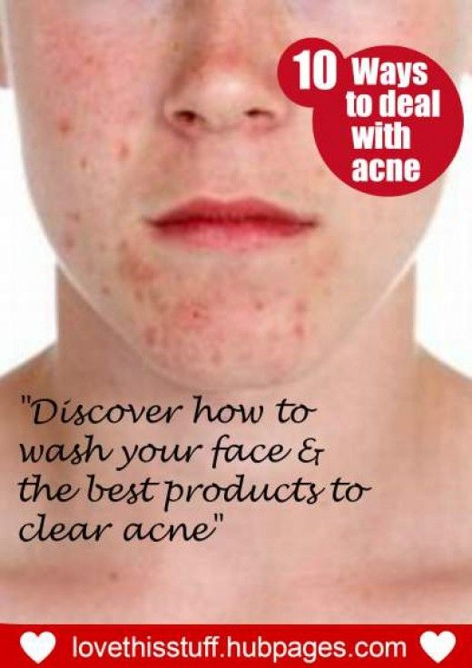How to eliminate acne with effective tips and products. #skin #care #healthy #acne