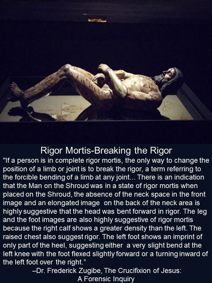 Rigor Mortis-Breaking the Rigor-of the Man on the Shroud