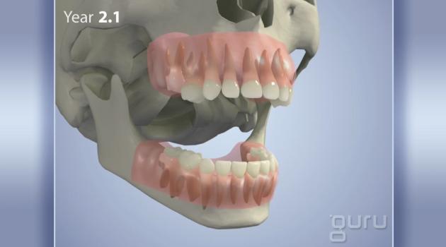 TeethDevelopment