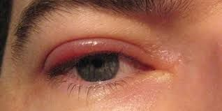 Blepharitis Symptoms, The common symptoms of Blepharitis include: Itchiness  in the eyelids Eye tea… | Blepharitis treatment, Swollen eyelids remedy,  Swollen eyelid