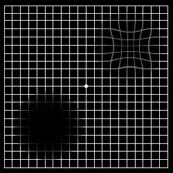 Abnormal Amsler Grid How To Check For Plaquenil Retinopathy