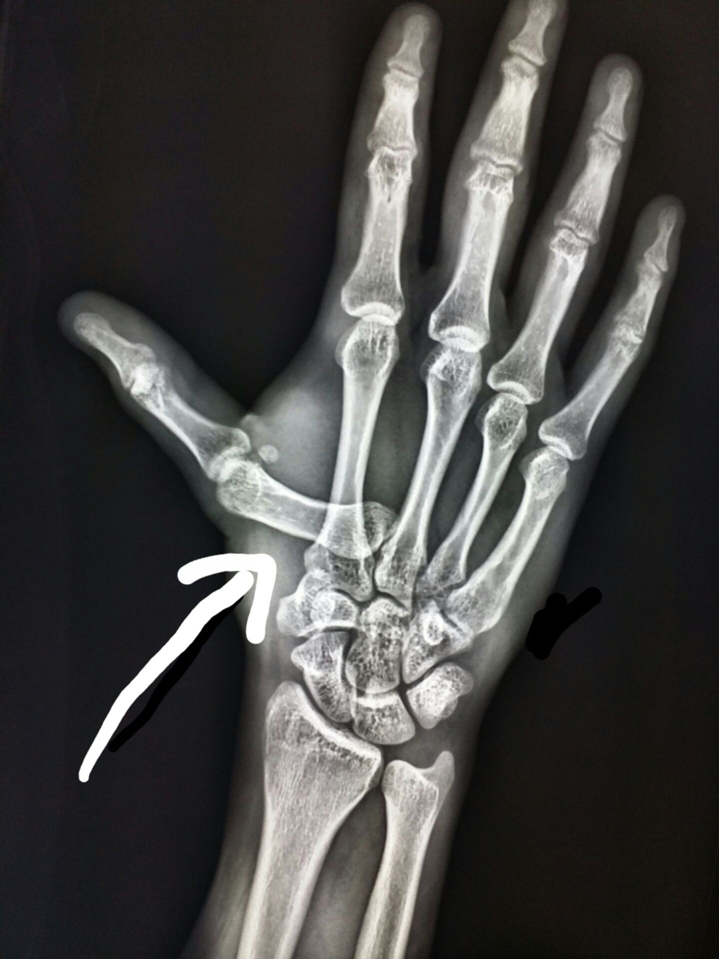 This is an x-ray of a hand. Luxación carpo -metacarpiana 1er dedo ...