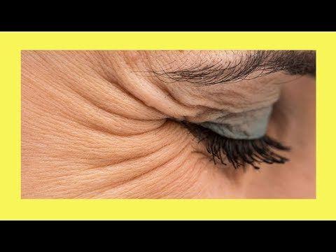 remedios caseros para eliminar las patas de gallo en los ojos