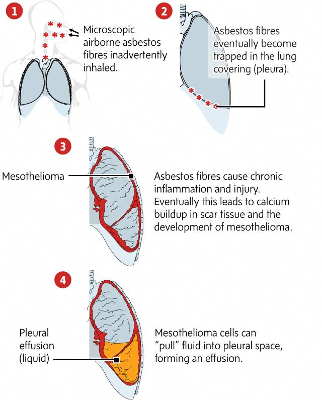 mesothelioma stage 4 symptoms #Mesothelioma   Mesothelioma