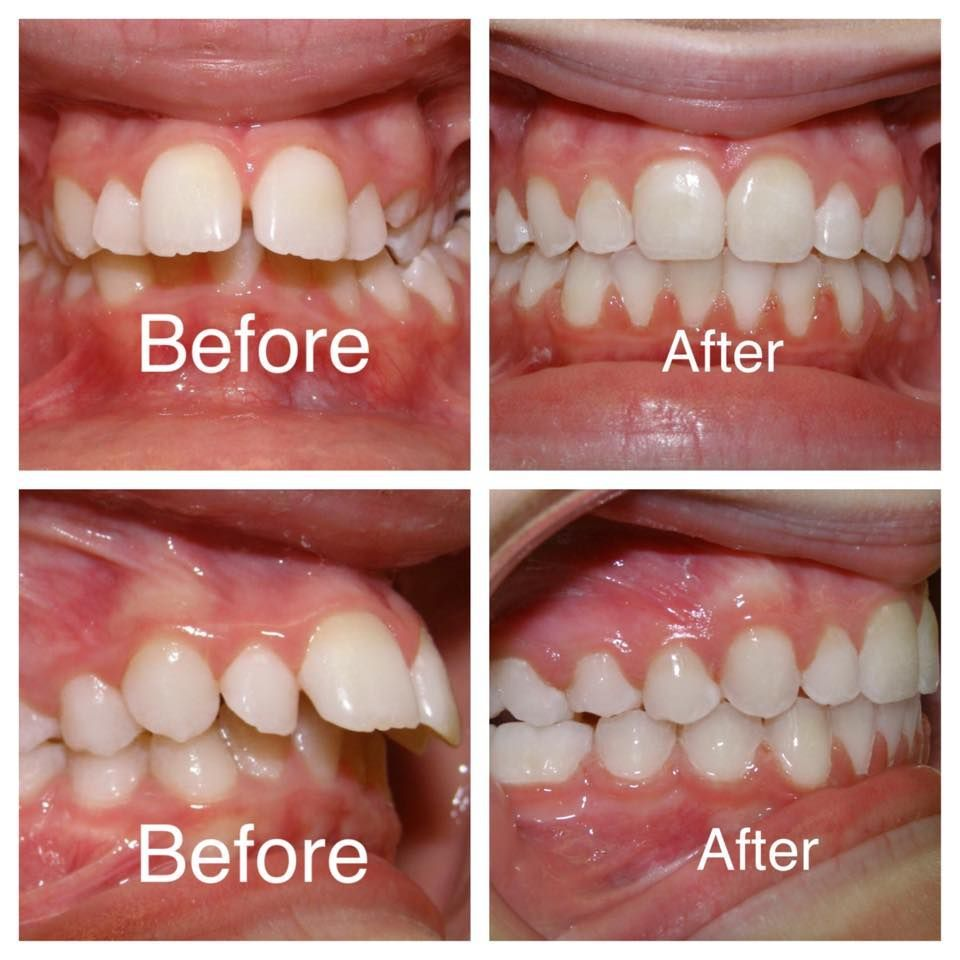 diş teli öncesi ve sonrası