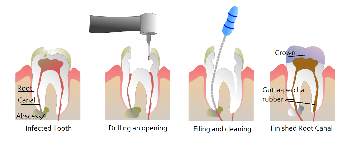 About Root Canal therapy and its possible Complications!!!!! http ...