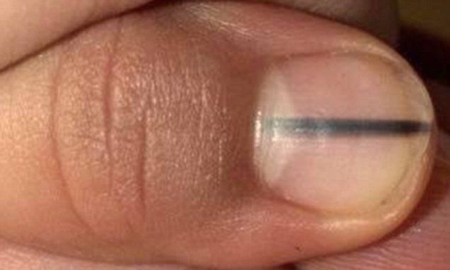 Beautician Recognised Woman S Dark Nail Stripe As Deadly Disease Nail Health Signs Fingernail Health Signs Lines On Nails