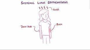 File Lupus Video Webm Lupus Reactive Arthritis Pustular Psoriasis