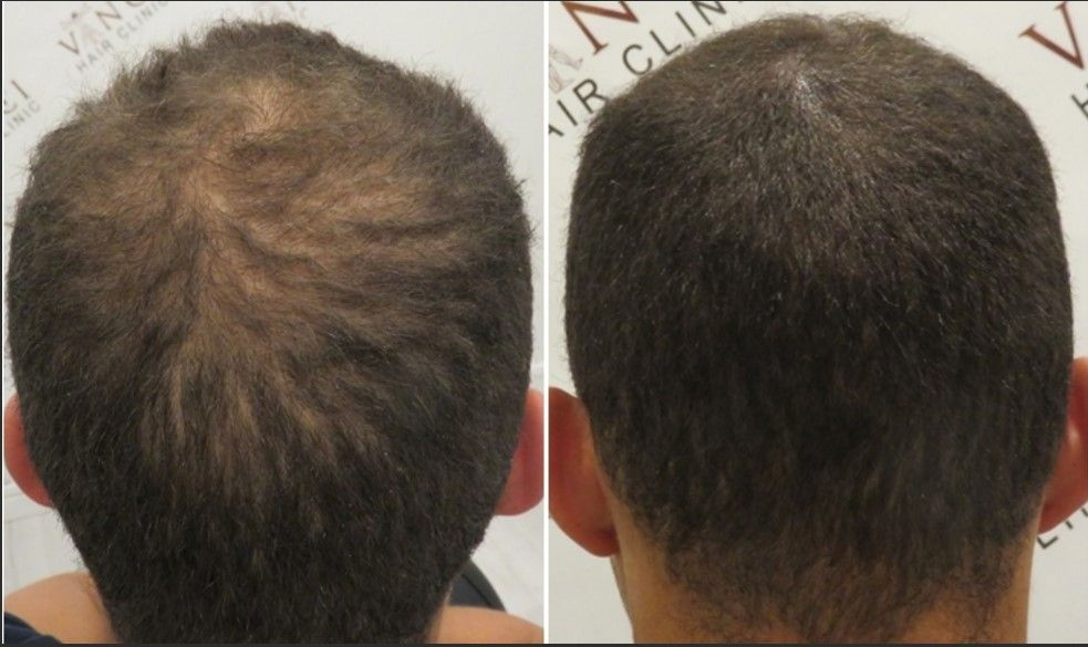 Thanks to the Micro Scalp Pigmentation treatment, we can blend the ...