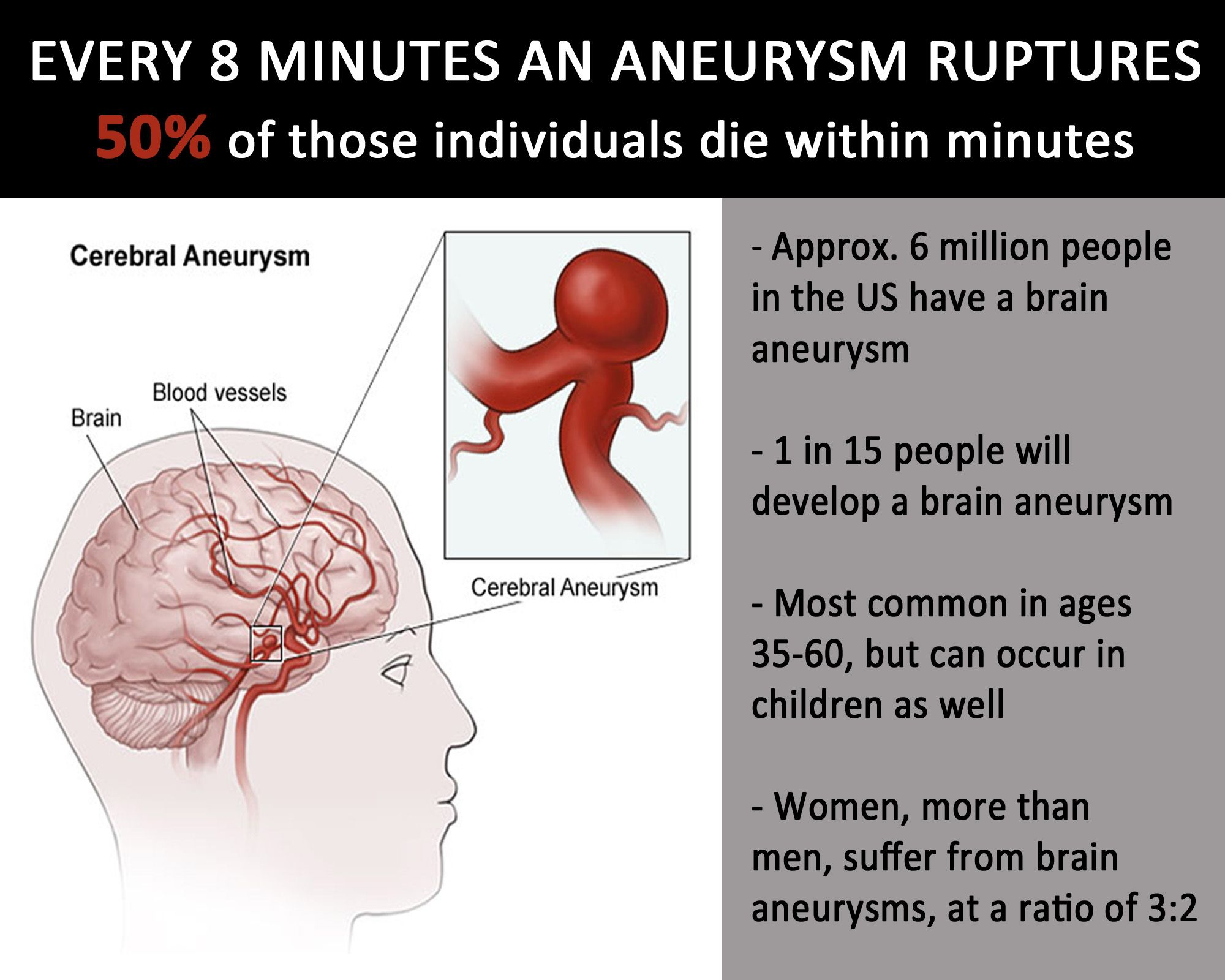 best 20+ brain aneurysm ideas on pinterest | cardiac nursing, Human Body