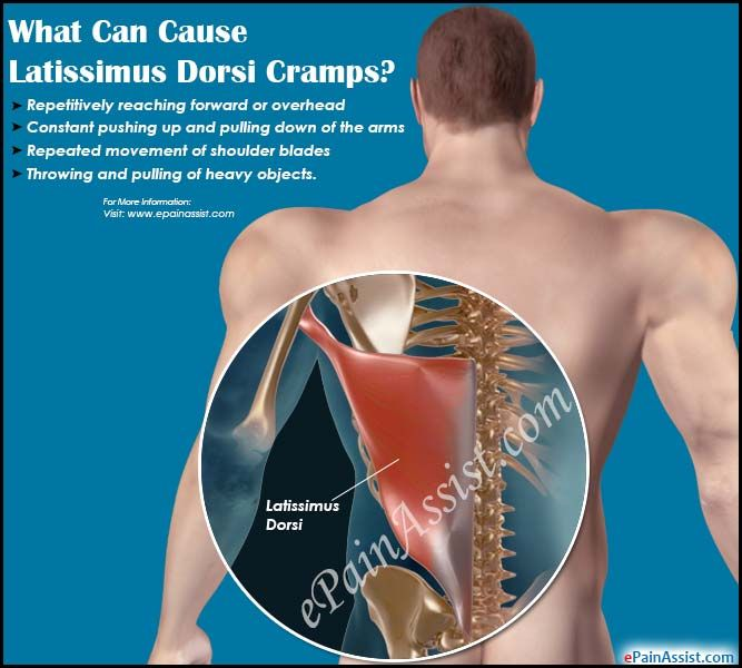 What Can Cause Latissimus Dorsi Cramps New Healthy