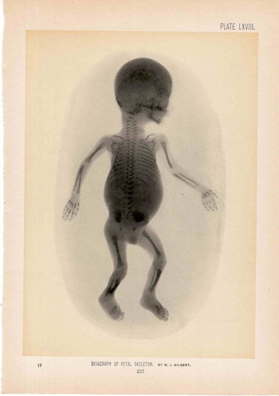 1899 fetus x ray original antique medical anatomy print lithograph of human baby