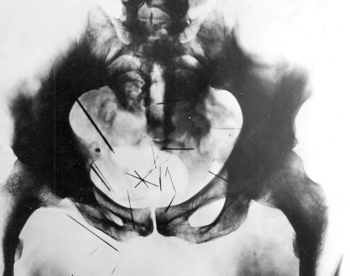 Albert Fish X Ray