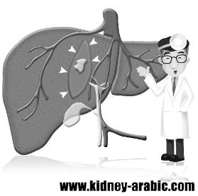 علاج الأمراض الكلية ما معني حجم الكلي 9 2 سم كيف علاجه Kidney Failure Treatment Kidney Failure Failure