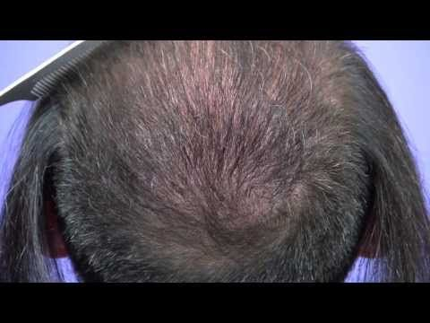 Dr Gabel Patient 2098 Follicular Unit Grafts In To The Crown Of