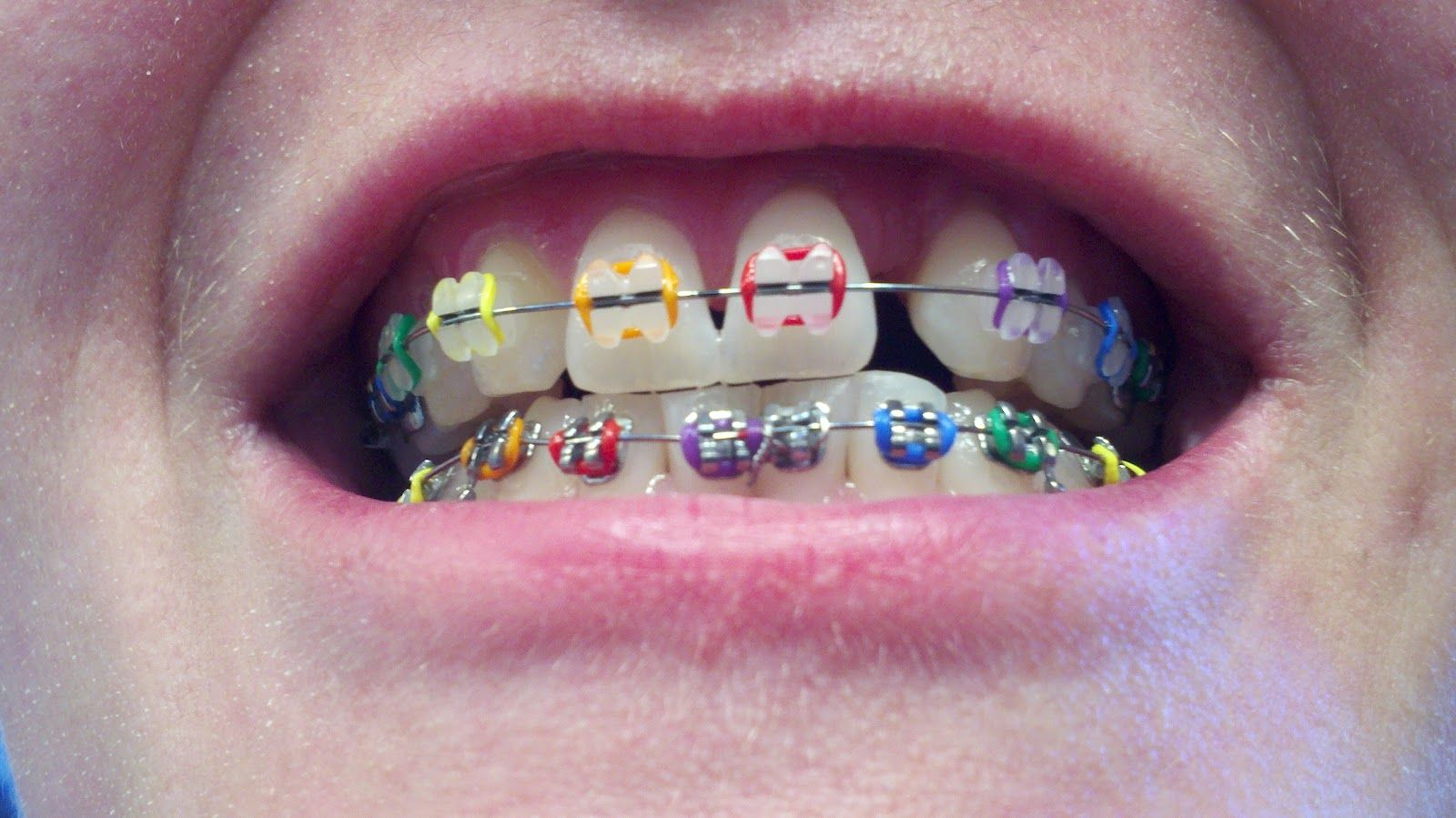 Clear Braces With Colors Clear braces with colored | metal ...