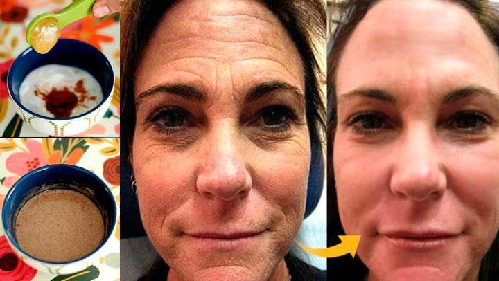 Algunos procedimientos de curación de barros y acné en la cara a menudo pueden dejar huellas en forma de manchas oscuras y cicatrices. Por lo tanto, es necesario otro método para resolver estos problemas de piel. Le ofrecemos una mascarilla que es una salvación real en estos casos sobre todo para eliminar las arrugas.
