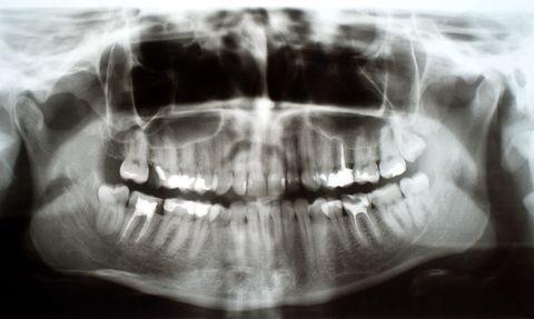 Gifte aus Wurzelfüllungen und toten Zähnen