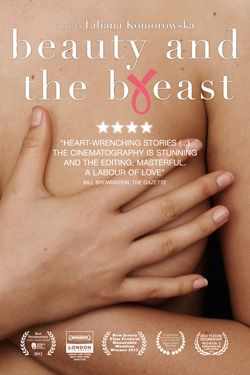 Beauty and the Breast: A first time documentary filmmaker offers a compelling insight into a devastating reality of breast cancer, as seen through the eyes of several female patients helping demystify the disease. http://ykr.be/uep770pi4. CSR PRODUCTIONS Entertainment Group, Inc. www.csrentertainment.com. #film, #documentary, #texas, #csrproductions, #csrentertainment, #beauty, #breast, @csrproductions1