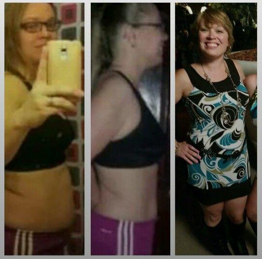Weight loss helps hirsutism photo 1