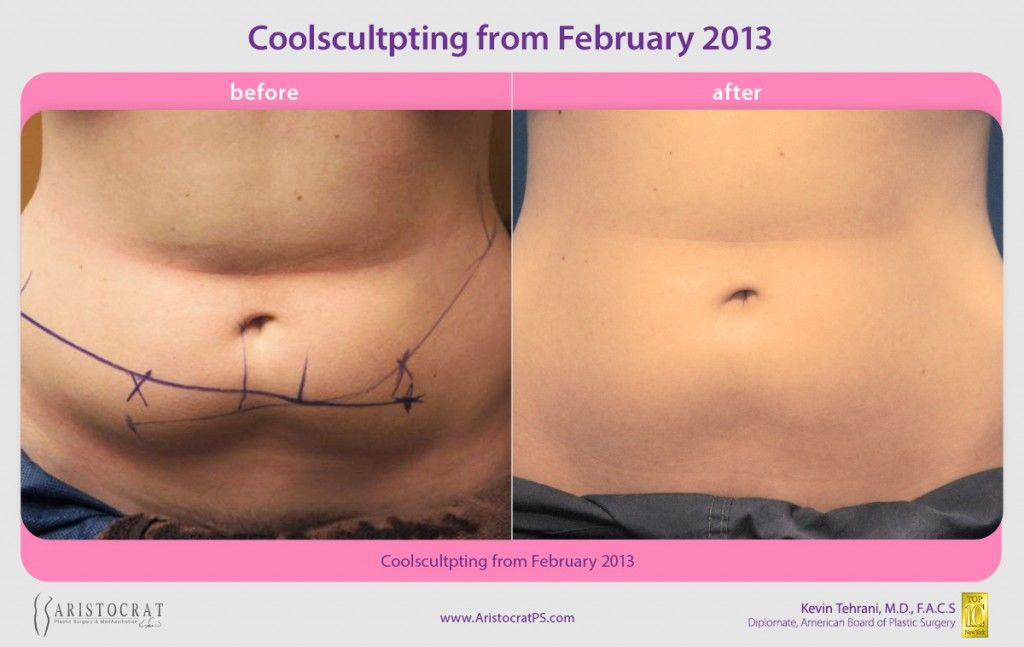 Coolsculpting Before And After Coolsculpting Is A Revolutionary Non