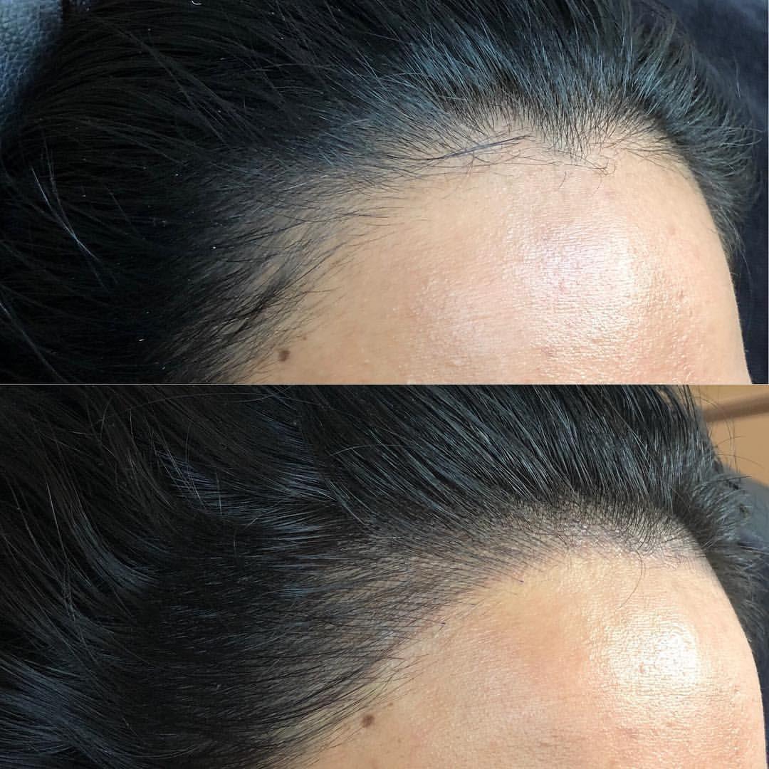Receding Hairline Method Used Microblading Microblading Ibrowstudio Microbladingbrighton Eyebrows E In 2020 Hairline Tattoos Microblading Microblading Eyebrows