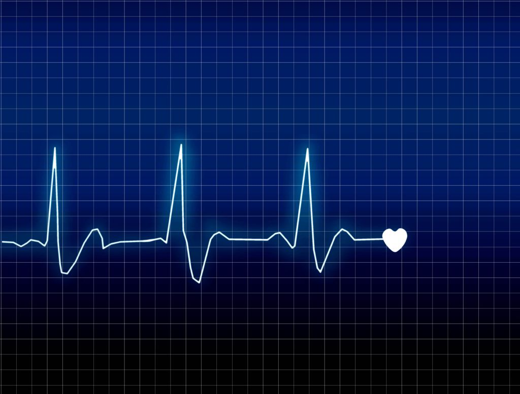 Heart Rate Line Health Pictures In A Heartbeat Heartbeat Monitor Heart Beat Rate