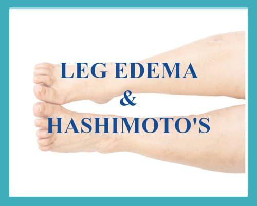 Hashimoto S Leg Swelling Thyroid Problems Hashimotos Thyroid