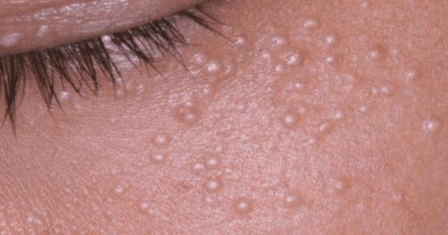 como eliminar protuberancias en la cara