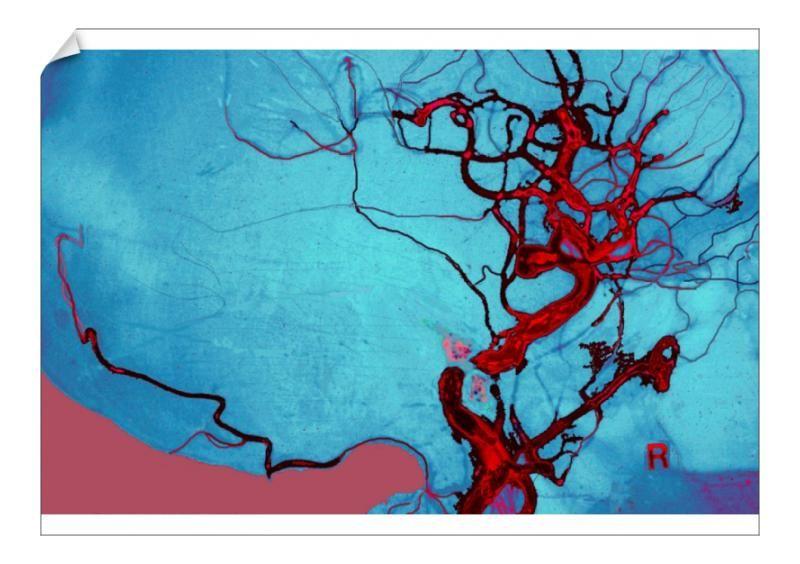 17+ A1 Poster. Blocked Vein Brain Burst Aneurysm Cerebral Blood