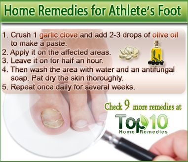 best treatment for athletes foot