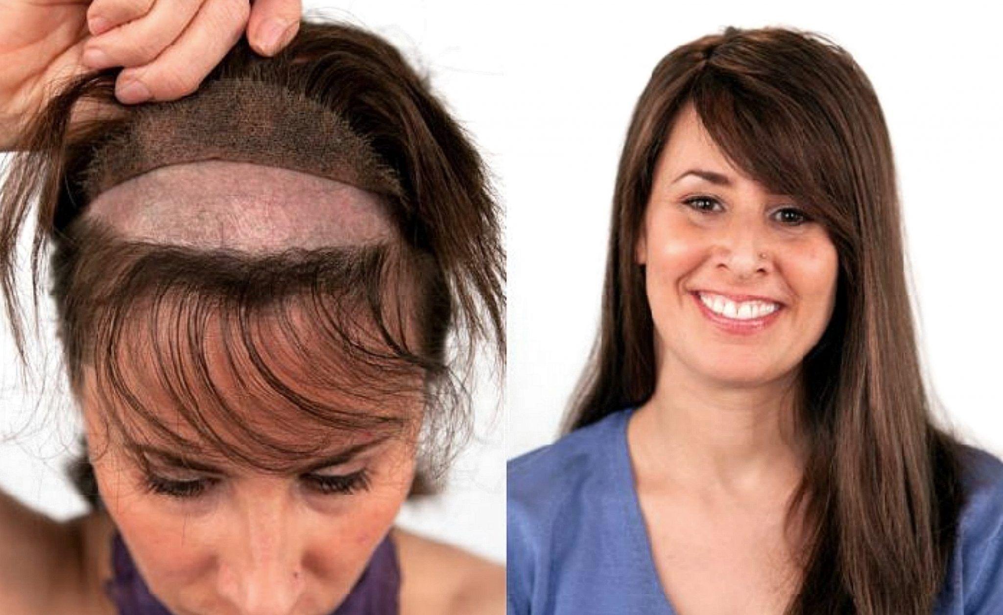 17+ Perte de cheveux femme coiffure inspiration