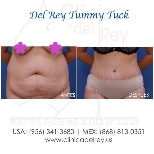 Pin On Tummy Tuck Lipectomía