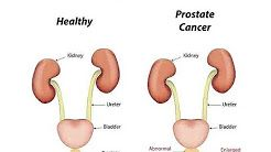 [Video] Prostate Cancer is cancer that occurs in the prostate.