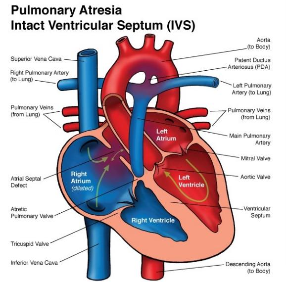 PULMONARY ATRESIA | Diagnostic medical sonography, Cardiac ...