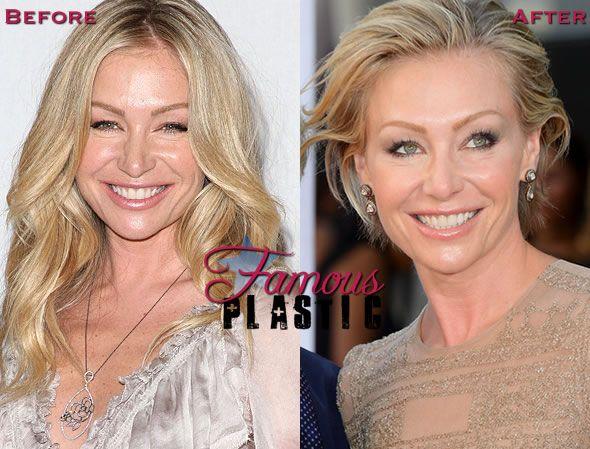 Celebrity Botox Pictures - Pinterest