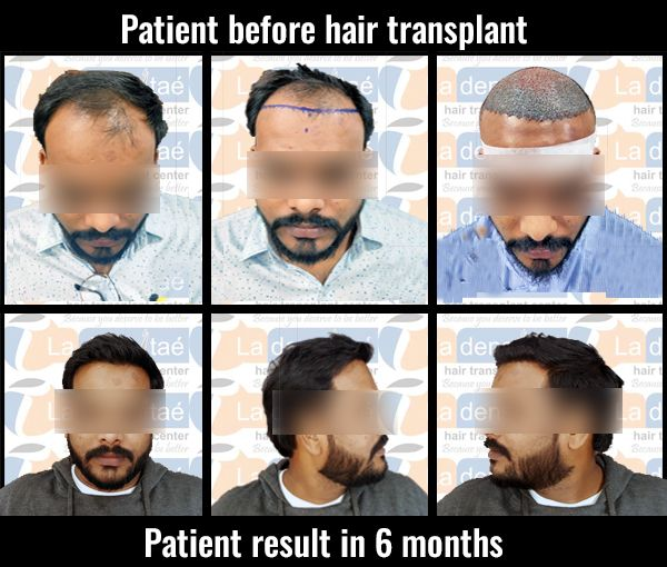 Best Hair Transplant Results in Pune Gallery