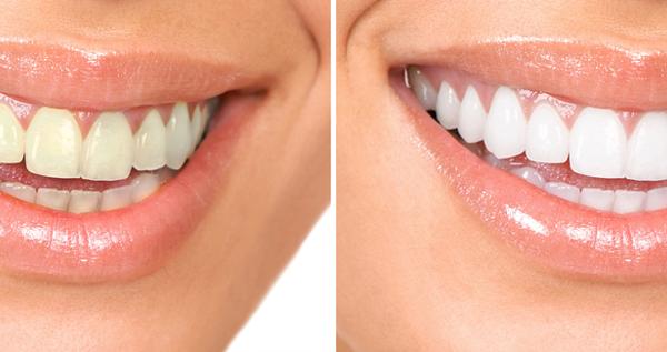 تبييض الأسنان طبيعي ا في المنزل 5 طرق نتيجتها في دقايق Health Fitness Health Fitness