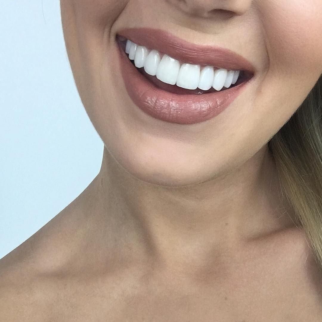 how to make your teeth white in one day