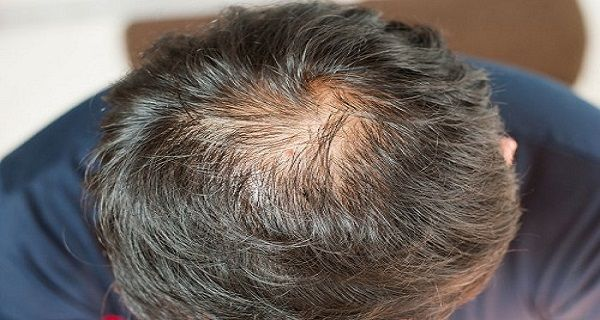 How To Use Coconut Oil For Against Hair Loss Gray Hair And