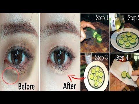 How To Get Rid Of Dark Circles and Under Eyes Bags ...