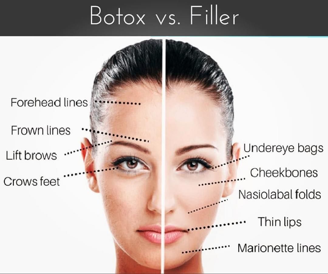 Where Should I Get Botox And Where Should I Get Fillers This Cheat Sheet Gives You A Guideline As To Where You Should Be Pok Botox Beauty Clinic Botox Fillers