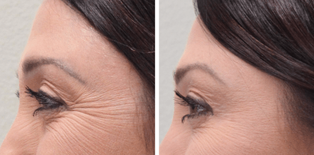 Does getting Botox hurt? #BotoxBeforeAfter | Botox Before