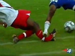 Explain To Me This Whole Soccer Craze Thing Again Soccer Injuries Soccer Sports Injury