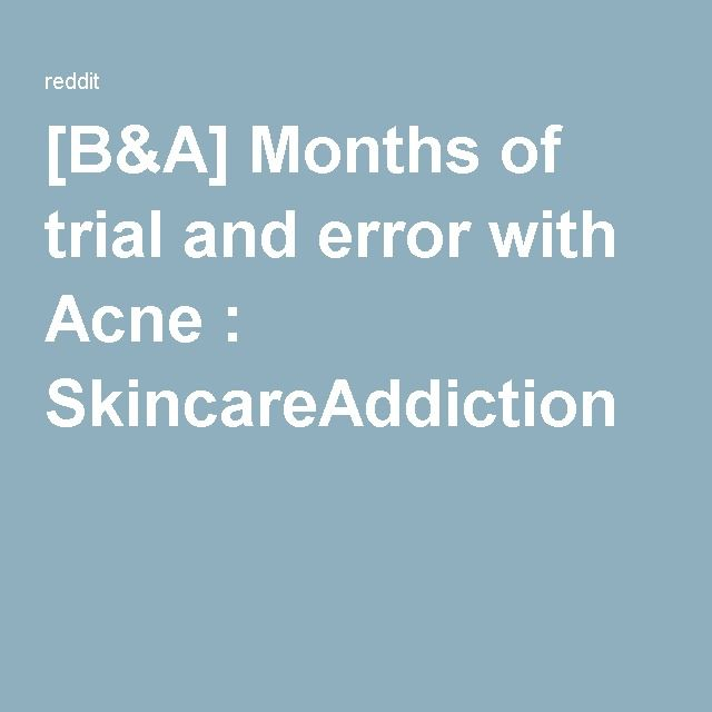 [B&A] Months of trial and error with Acne : SkincareAddiction