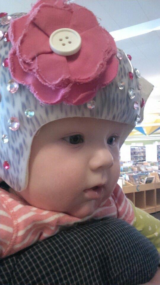 Cranial Orthotic Helmet Decoration Baby Helmet Helmet Helmet Ideas