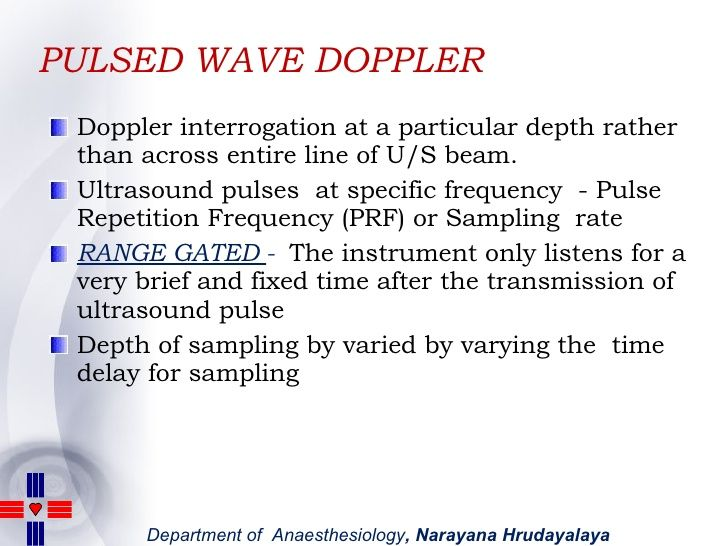 Pulsed Wave (PW) Doppler - Ultrasound Physics | SPI - ultrasound
