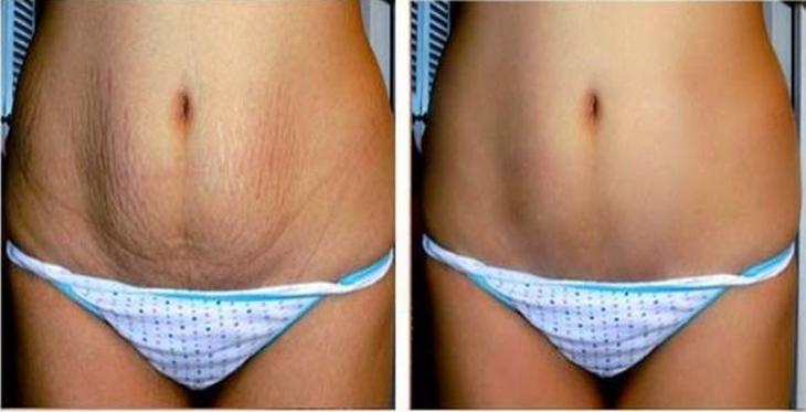 Las estrías suelen ocurrir durante los cambios repentinos en el tamaño del cuerpo, al igual que durante la pubertad, el embarazo ...