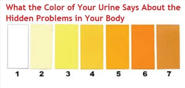 Latest Medicine For Urine Color Says Your Health Condition  Body