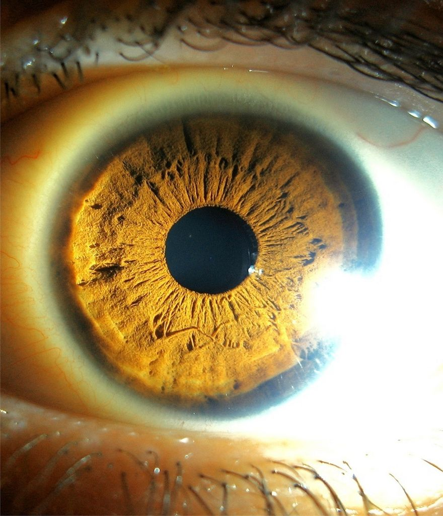 Blog de cursoiridologia : IRIDOLOGIA - CURSO DE IRIDOLOGIA A DISTÂNCIA, ESTUDOS DA ÍRIS HEMATÓGENA – COLARETE E DIÁTESE LIPÊNICA